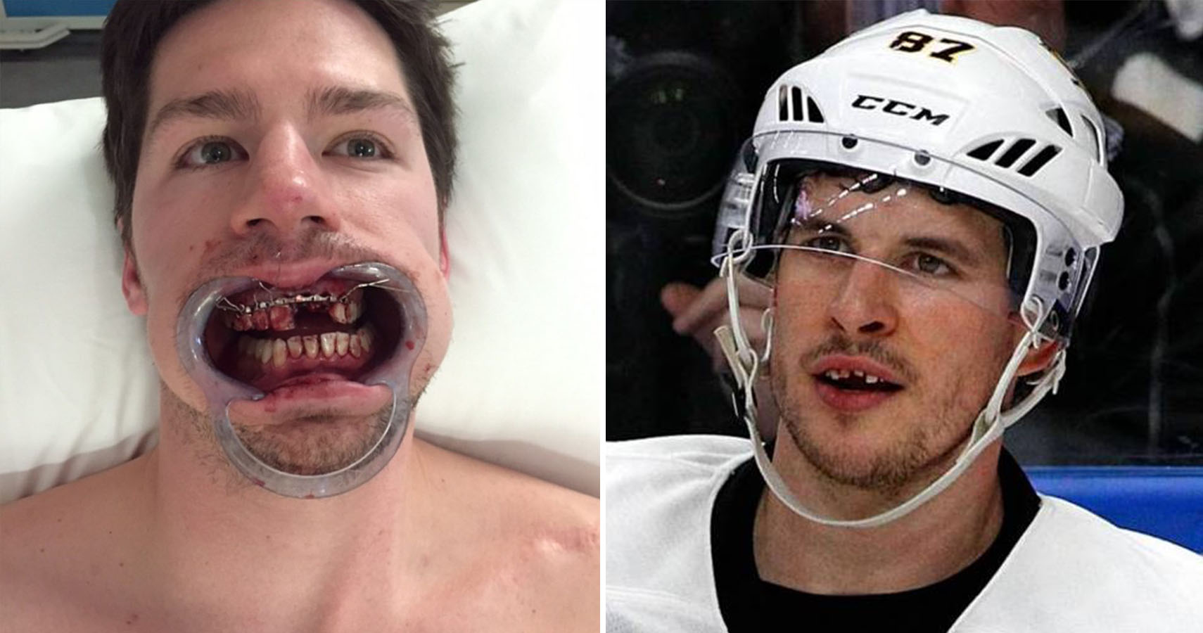 Pictures Of Nhl Players Who Lost A Tooth